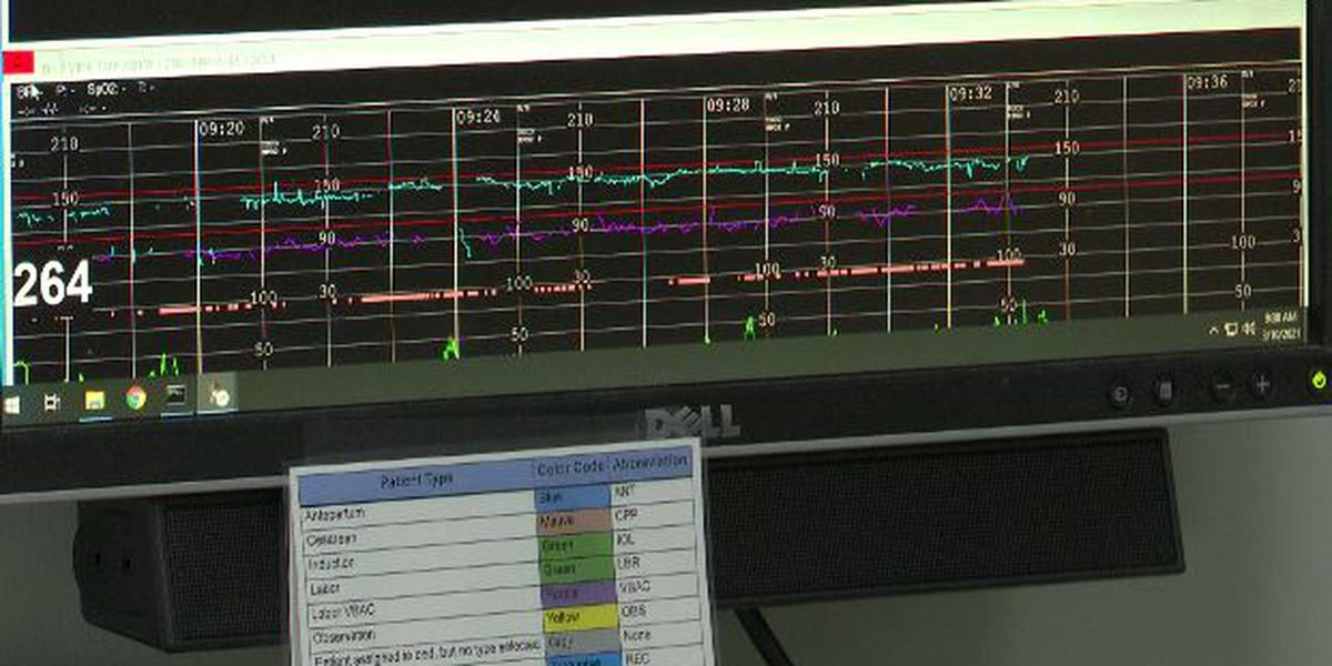 New fetal monitoring system being used at Lewis County Health System